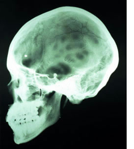 Routine x-ray examination discloses skull fractures.