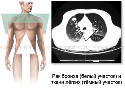 Bronchus cancer identified in lung tissue on thorax (chest) CT scan.