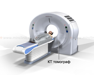 During the procedure of the chest computerized tomography (CT)the patient should lie still.