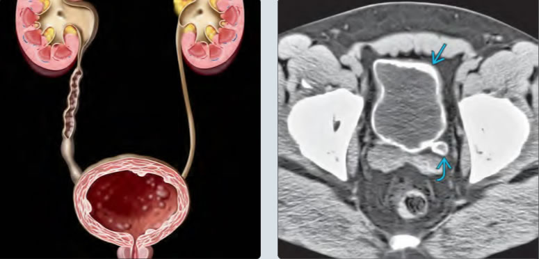 Pelvic CT scans demonstrating ureter and bladder lesions.