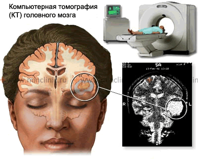 Brain CT scan allows to visualize some types of the brain parenchyma and its membranes tumor.