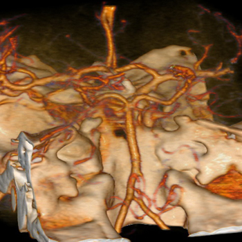 On the cerebrovascular CT-angiography are shown vertebral and the basilar artery in the posterior cranial fossa (rear view).