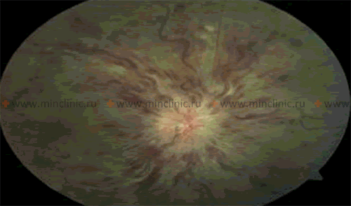 Fundus photography suggests occlusion of the central retinal vein.