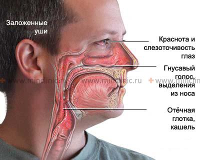 выделения из носа,