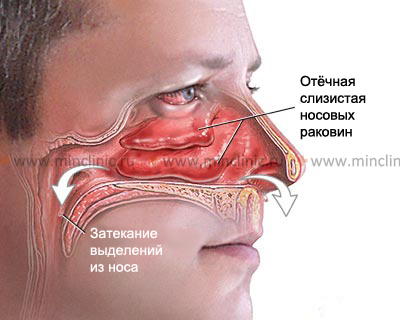 Chlamydial rhinitis and conjunctivitis may be part of Reiter's syndrome.