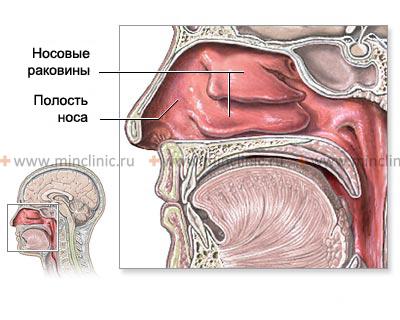 При хронической форме катарального ринита набухает слизистая оболочка полости носа.