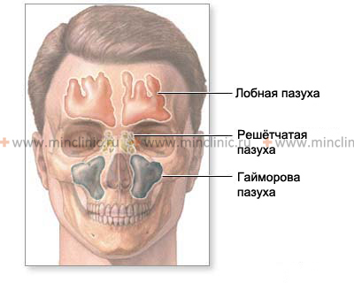 The maxillary sinus communicates with the nasal cavity and prone to inflammation — chronic and acute sinusitis.