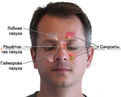 Acute sinusitis (inflammation of the frontal sinus ) is accompanied by a headache in the forehead and behind the eyes, fever.