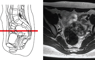 Magnetic resonance imaging (MRI) of the pelvic organs in a woman (uterus and appendages are visible).