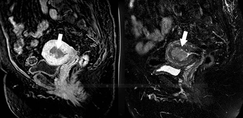 Endometrial cancer with myometrial invasion detected during pelvic MRI.