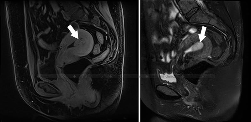 Endometrial polyp detected during pelvic MRI.