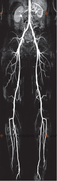 MRI angiography of the abdominal aorta, renal arteries and lower extremities obtained on a new device in one study.