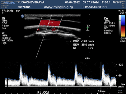 Doppler ultrasonography (Doppler ultrasound) in the diagnosis of craniocervical vessels.