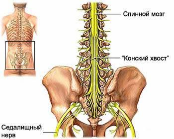 Tibial nerve, neuritis of the tibial nerve injury tibial nerve, acupuncture at the tibial nerve neuritis, treatment of neuritis of the tibial nerve, the diagnosis of neuritis of the tibial nerve, traumatic neuritis, traumatic neuralgia, neuritis diagnosis and treatment in Moscow, post-traumatic neuritis, intoxication neuritis, neuralgia, symptoms
