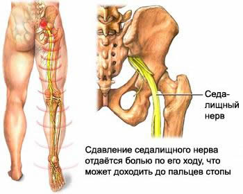 Low back pain, spine and lower back, herniated disc, protrusion of intervertebral diskadiska, leg pain, back pain, discitis, lumbago, osteochondrosis, retrolistez, weakness in his leg, Sheermana Mau's disease, treatment of osteoarthritis and back pain, sciatica, treatment of spinal diseases, non-surgical reduction of vertebral disc herniation, techniques and methods of treatment, herniated spinal treatment, symptoms of herniation of the cervical, Schmorl's hernia treatment, hernia, treatment of herniated spinal diseases, as well as to treat a hernia, treatment of herniated disc treatment herniated spinal, treatment of intervertebral hernia, treatment of intervertebral hernia, treatment of intervertebral hernia, treatment of intervertebral hernia, treatment of vertebral hernia, treatment of vertebral hernia, treatment of prolapse, the protrusion and the intervertebral hernia, medical treatment, intervertebral, intervertebral hernia treatment, intervertebral hernia, intervertebral, intervertebral hernia treatment, intervertebral, intervertebral, hernia treatments, the muscles of the spine, vertebral, spinal, vertebral hernia treatment, therapy exercises, sequester, hernia symptoms, exercise for the treatment of hernia, Schmorl, Schmorl therapy to treat disc protrusion in Moscow, the protrusion of pain, the pain of the protrusion how to treat, how to cure, where cure, where cure, medications for back pain, inflammatory symptoms, the symptoms of diseases, symptoms, syndrome, disease, symptoms of disease