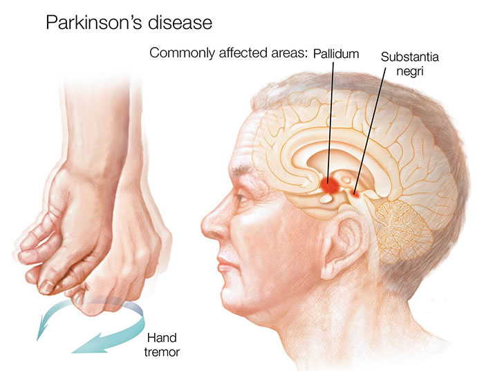 Parkinson's disease is a progressive nervous system disorder that affects movement.