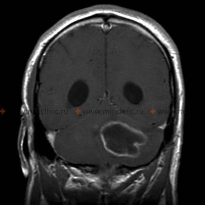 Selected MRI images (T1 C+ coronal) demonstrate a left cerebellar hemisphere lesion, which has high T2 signal centrally, and a thin relatively regular rim of contrast enhancement peripherally. Note the presence of dilatation of the occipital horns, consistent with hydrocephalus.