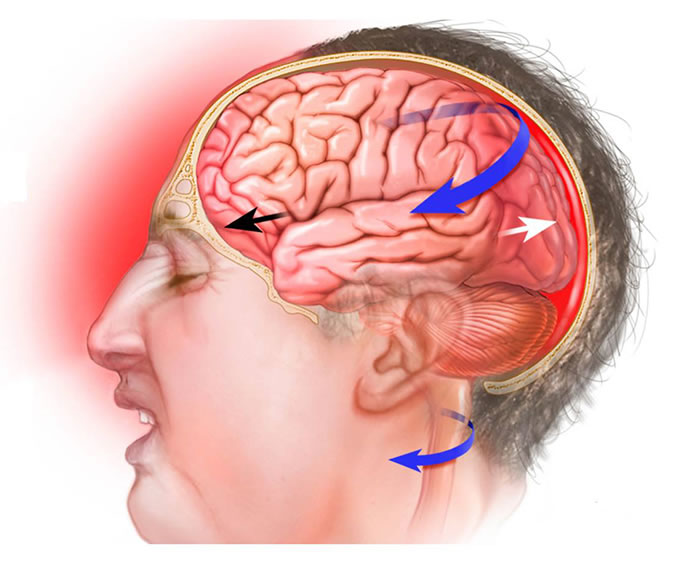 A concussion is a traumatic brain injury that affects brain function.