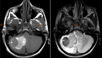 Brain MRI of a patient with hemorrhage in the right hemisphere of the cerebellum (arrow).