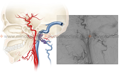 The procedure for selective cerebral angiography of neck vessels (carotid artery).