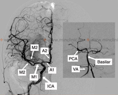 The procedure for selective cerebral angiography of neck vessels (carotid and vertebral arteries), with their segments.