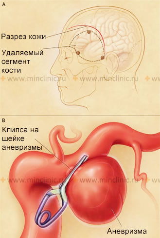 Stages of the operation (A, B) of clipping the neck is not ruptured or ruptured saccular cerebral artery aneurysm.