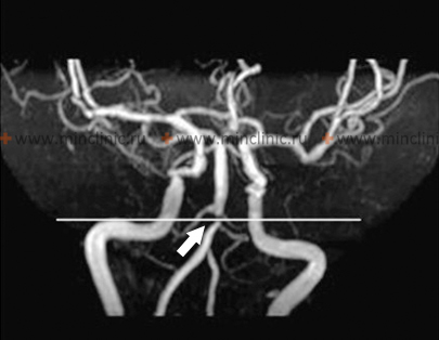 MRI angiography of cerebral arteries showed narrowing of the basilar artery.