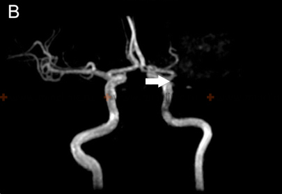 MRI angiography of cerebral vascular thrombosis shows a left middle cerebral artery (white arrow).