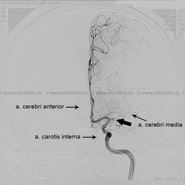 In patients with ischemic stroke and right hemiplegia in angiography left internal carotid artery thrombosis diagnosed. The arrow indicates the blockage left middle cerebral artery (the place of divergence from the internal carotid artery).