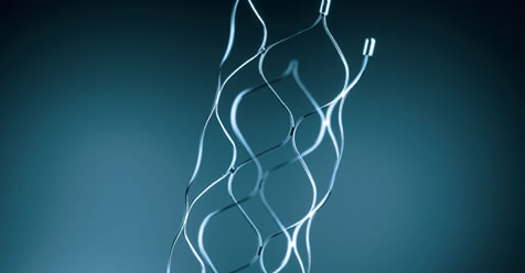 Stent retriever for intravascular thrombectomy.