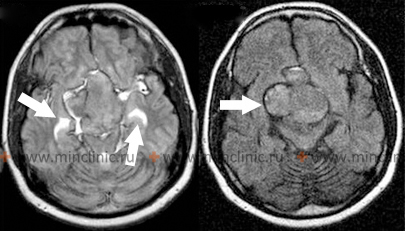 Brain tumors (pituitary makroadenoma, arrow on the right) may be accompanied by intracerebral hemorrhage (two arrows on the left).