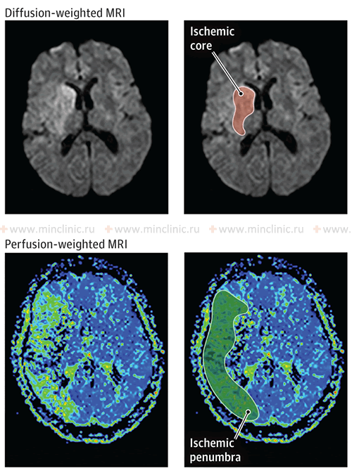 Brain MRI following acute ischemic stroke. Diffusion- and perfusion-weighted MRI with ischemic core and ischemic penumbra. Diffusion-weighted MRI (DWI) shows hyper-intensity, which corresponds to irreversible ischemia in the depth of the right middle cerebral artery basin. This ischemia affects the caudate nucleus, internal capsule and lenticular nucleus. Perfusion-weighted MRI (PWI) uses a contrast agent to assess cerebral blood flow. The color scale represents average time of passage of contrast material through brain tissue; blue indicates normal transit time, and the shades of green, yellow, orange and red indicate the contrast transit delay (zone of ischemia). In the ischemic core area contrast agent is not detected (black color), which indicates irreversible damage of the brain. The area surrounding the ischemic core, with an abnormal passage of contrast are considered as ischemic penumbra.