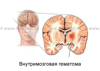 Intracerebral hemorrhage in size and location directly depend on the type of vascular disease of the brain.