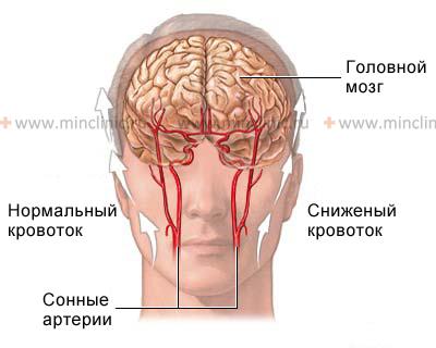 Сужение артерии головного
