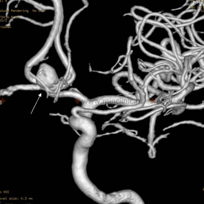 Modern high-field MRI angiography (3 Tesla and above) reveals an aneurysm of cerebral arteries without intravenous contrast.