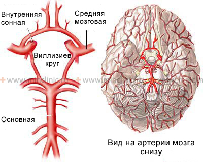 Atherosclerosis affects the lumen and wall of the basilar artery.