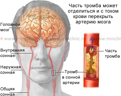 Atherosclerosis with thrombosis of the cerebral arteries may cause  (TIA) or stroke.