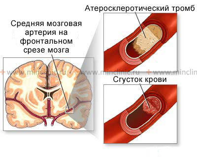 Occlusion of cerebral arteries may be caused by a clot burden from the heart cavity (embolism) and the atherosclerotic process in the vessel.