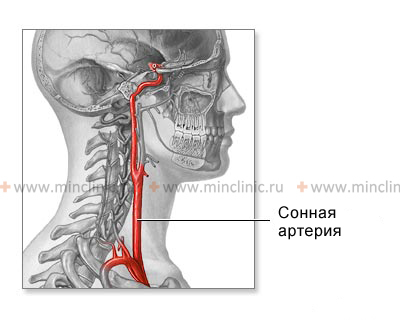 Anatomy of the common carotid and internal carotid artery gives to understand the mechanism of ischemic stroke.