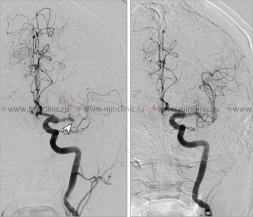 Anterior-posterior fluoroscopic cerebral angiography before (left middle cerebral artery (MCA) embolic occlusion) and after (subsequent reperfusion) mechanical thrombectomy, performed by stent retriever device.
