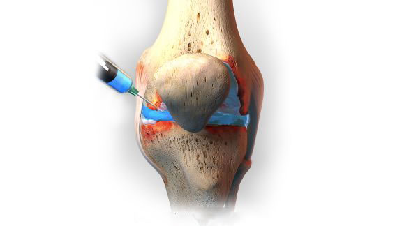 Hormons, platelet-enriched plasma (PRP) or artificial joint fluid can be injected into the knee joint cavity, which weakens the pain symptom and inflammation, and also promotes the regeneration of the articular (cartilaginous) surface.
