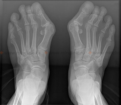 A typical X-ray pattern when deformtsii hallux valgus foot.