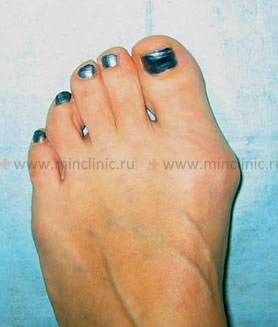 II degree of hallux valgus foot deformation.