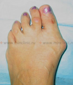 III degree of hallux valgus foot deformation.