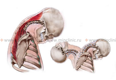 Cervical (ligaments, muscles) and head whiplash injury mechanism during the car accident or collision (skating, rollerblading, skiing or snowboarding) cause the cervicocranial syndrome.