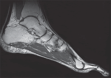 MRI of the ankle ligaments may sometimes be necessary in case of rupture of the Achilles tendon or its extension.