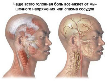 Migraine and tension-type headache - most common headache types occurrence in patients.