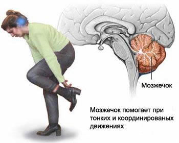 By reducing blood flow in the basin of the vertebral arteries and the main job of the cerebellum is suffering, there is a symptom of dizziness against the vertebro-basilar insufficiency.