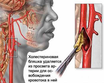 КМН — Инсульт, микроинсульт, ишемия головного мозга