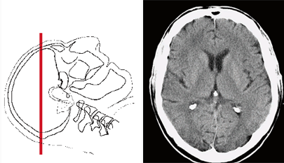 Brain CT scan in the axial plane is prescribed case of traumatic brain injury, hemorrhagic stroke, etc.